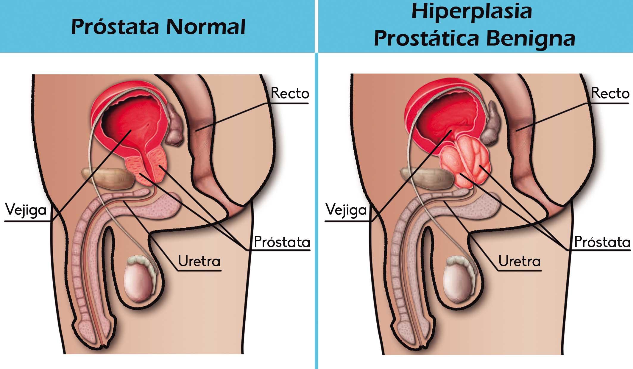 Cómo mantener una erección después de la cirugía de próstata