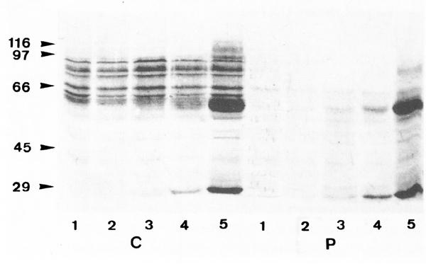 lupuseritemaB24-F2