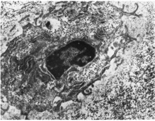 citocartilartB30-F2